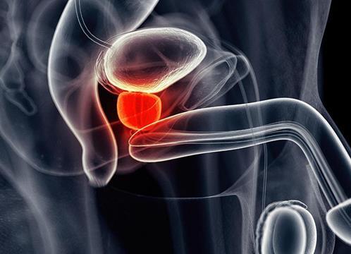 FDA批准首个口服激素药物,用于治疗晚期前列腺癌