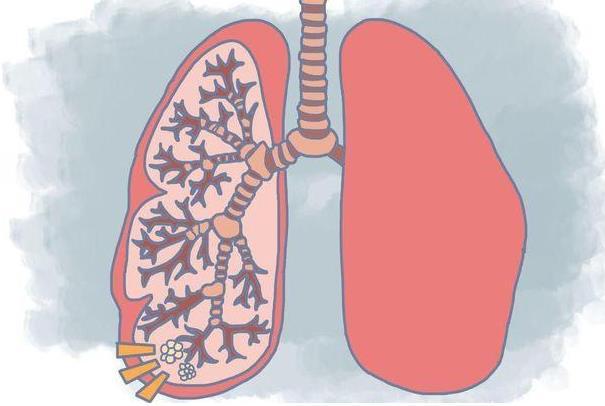 肺有小结节要注意什么