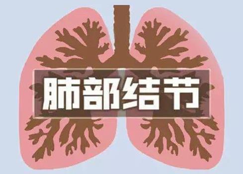 肺结节影严重吗