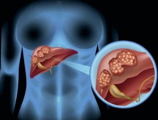 肝癌腹水症状的发展过程及治疗方法