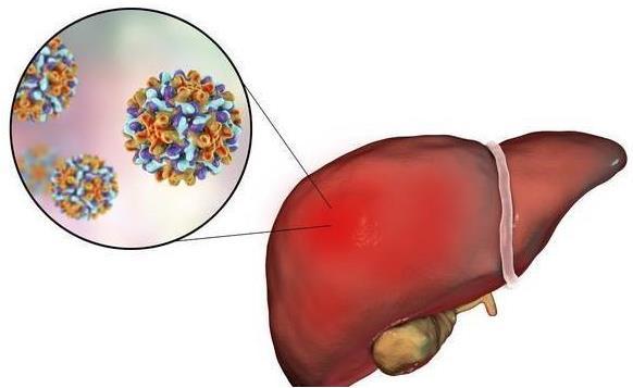 这四个症状表明肝癌已经到了晚期了