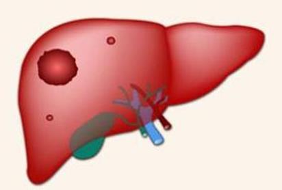 肝癌免疫组化指标