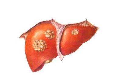 肝癌善于伪装,发现就是晚期?