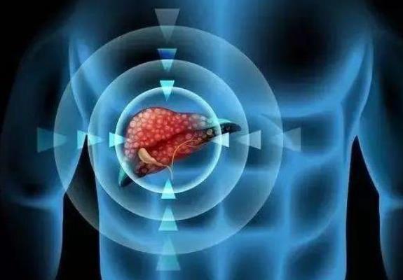 肝癌来了,身体有哪些预兆?