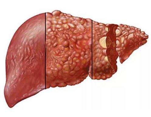 肝癌早期:请注意皮肤上的这些症状