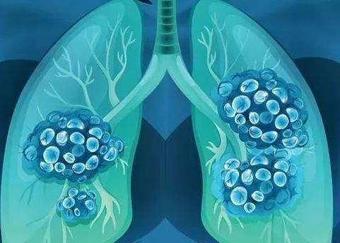 患上晚期肺癌,还能活多久