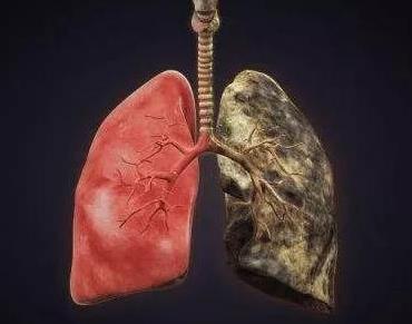 如何预防及早期发现肺癌